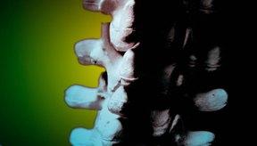 La estenosis espinal también puede causar presión sobre la médula espinal.