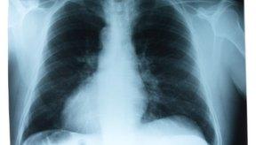 Una dieta saludable puede ayudar a reducir el líquido de los pulmones.