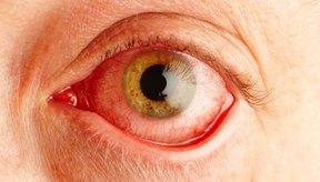 La pigmentación en el iris te da el color de ojos.