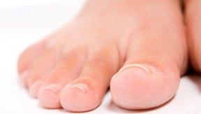 Las uñas de los pies curvas finalmente se encarnan.