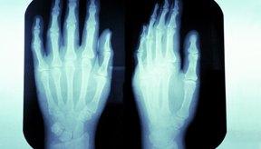 Las fracturas en las manos pueden resultar en rigidez o disminución de la amplitud del movimiento.