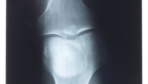 La osteoartritis a menudo se produce cuando las personas envejecen.