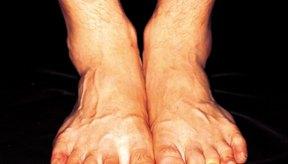 Tendones recogidos en el pie
