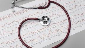 La frecuencia cardíaca se ve afectada por una variedad de niveles de intensidad.
