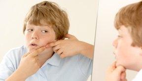 La testosterona y el acné se encuentran estrechamente vinculados.