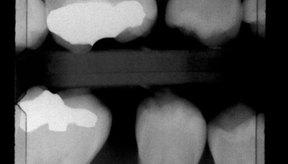 El blanco en la radiografía es un relleno, la caries en la radiografía se muestra como una sombra oscura en el diente.