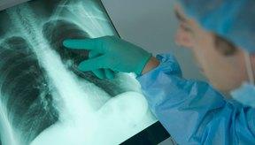 El asma afecta a varios órganos vitales, no sólo a los pulmones.