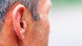 La hiperhidrosis facial ocasiona sudoración excesiva del rostro.