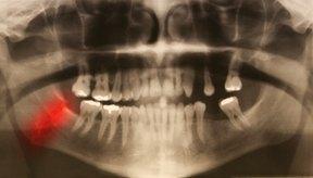 Los dientes y la mandíbula son un tipo de articulación.