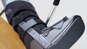 La recuperación de las fracturas suele requerir una rehabilitación física.