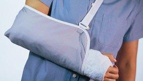 Los cabestrillos se utilizan para proteger un brazo lesionado.