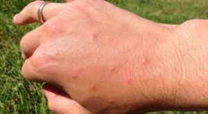 The State Of Kansas Is At Risk To West Nile Virus