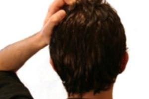 Remedios naturales para un cuero cabelludo seco y con picazón