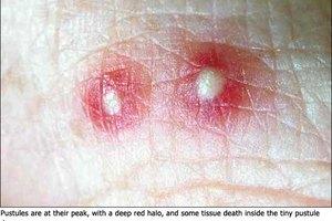 Remedios caseros para aliviar la picadura de la hormiga de fuego