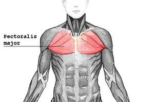 Síntomas de un esguince en el músculo pectoral