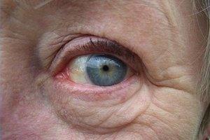 ¿La crema para las hemorroides puede ayudar a las arrugas?