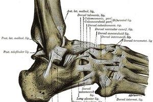 Cómo curar un calambre en el dedo del pie