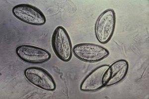 Cómo limpiar la casa de una infección de parásitos intestinales