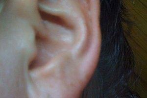 Síntomas de la infección del lóbulo de la oreja