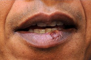 How to Determine Allergies Causing Cold Sores