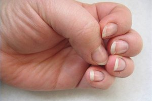How to Take Care of a Split Nail Bed