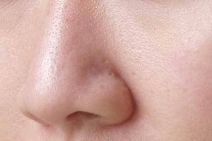 What Causes Large Pores on the Face?