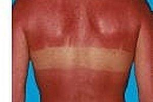 How to Treat A Sunburn with Noxzema