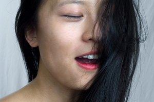 Asian Skin Treatment of Hyperpigmentation