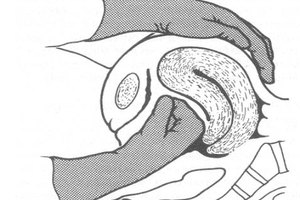 How to Care for a Patient with Uterine Atony