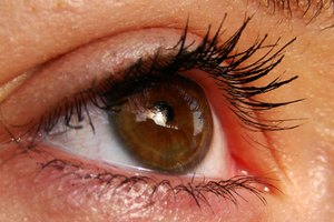 Using Steroid Creams Around the Eyes