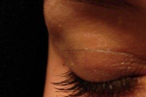 ¿Qué causa la pérdida de las cejas?