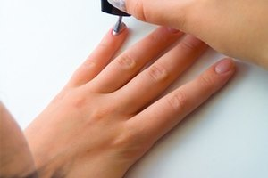 What Are the Treatments for Brittle Nails?