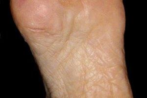 Síntomas de ruptura de fascia plantar