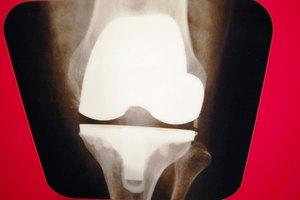 Incapacidad para hacer cuclillas y lesión de rodilla