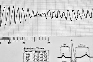 Los electrolitos y arritmias cardíacas