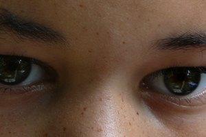 Cómo hacer que desaparezcan las bolsas bajo los ojos