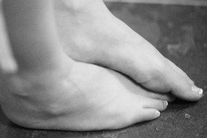 Ejercicios para personas con los pies torcidos hacia dentro