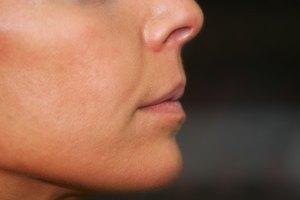 The Best Concealer for Broken Veins on Face