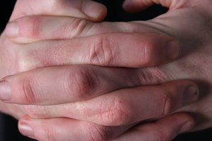 Los signos de una rotura de ligamentos en el dedo