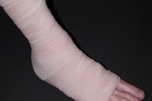 Dieta después de la cirugía de fractura de hueso