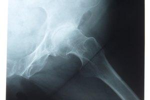 Alivio para el dolor de cadera en personas mayores
