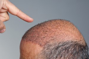 Hair Regrowth After Iron Deficiency