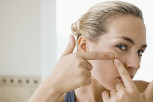 How to Make Pimples Go Away Before They Surface