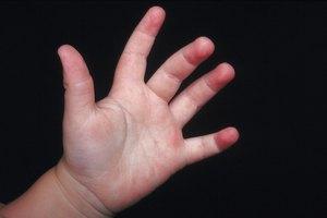 Mi bebé tiene las palmas de las manos y las plantas de los pies rojas
