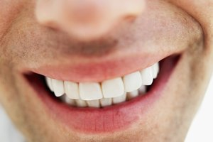 How to Get Natural, White-Looking Teeth