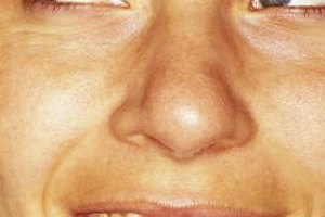 Biting your dry lips can lead to sores or even more scales.