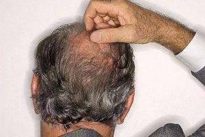 ¿Cómo saber si los folículos del pelo están vivos?