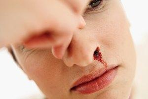 Sangrados nasales y cafeína