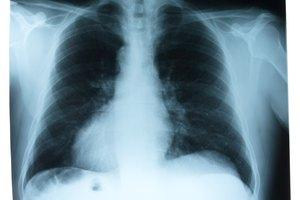 Cómo sacar mucosidad de los pulmones
