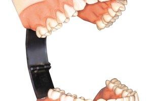Cómo sostener las dentaduras postizas sin un adhesivo